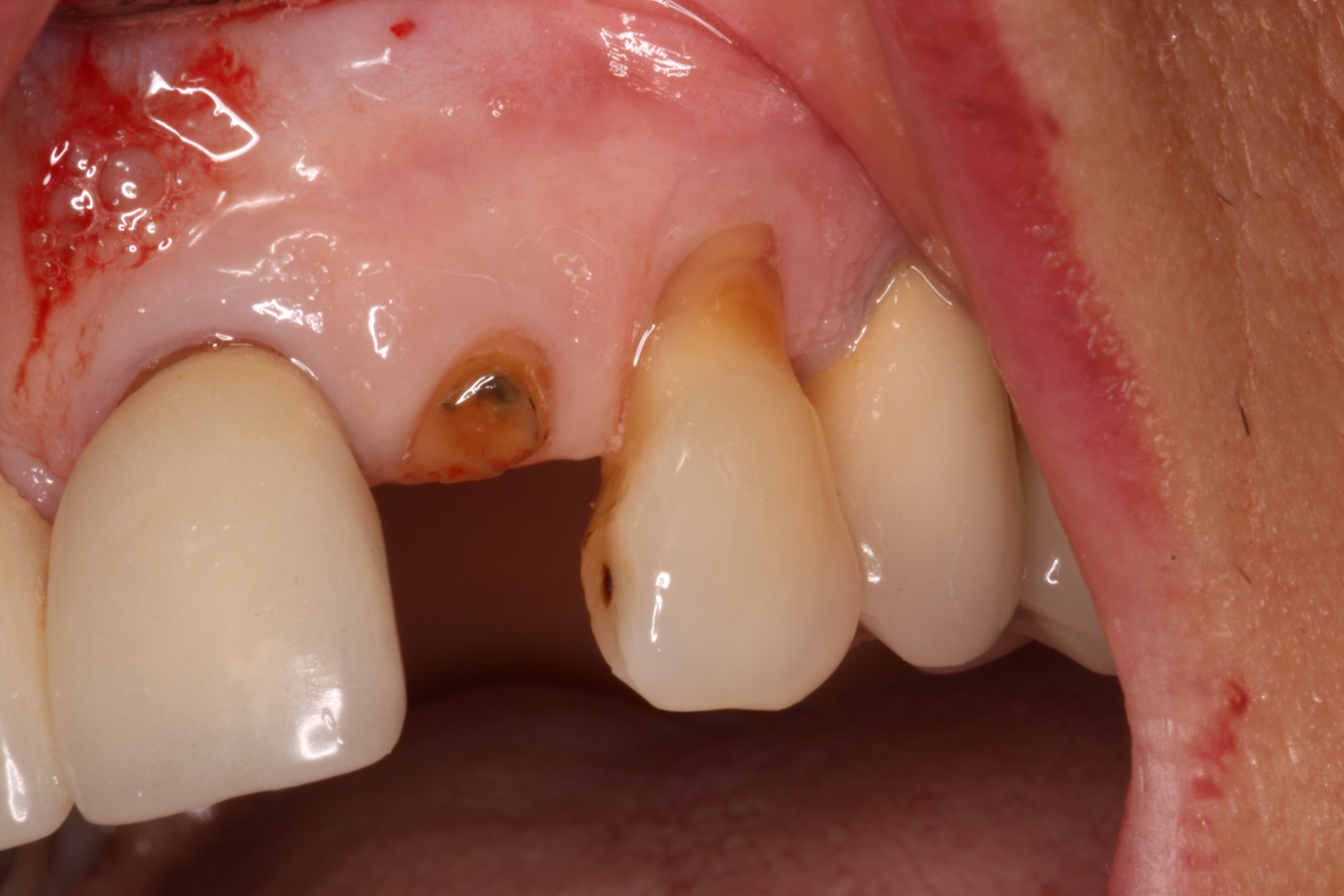 how dental implants are an excellent choice to replace