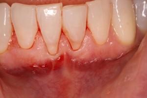 Gum Recession Pre-Op