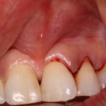 Before Frenectomy of High Frenum Attachment