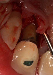 Example of a cleaned root surface without bacterial plaque or calculus (causes gum disease) post treatment