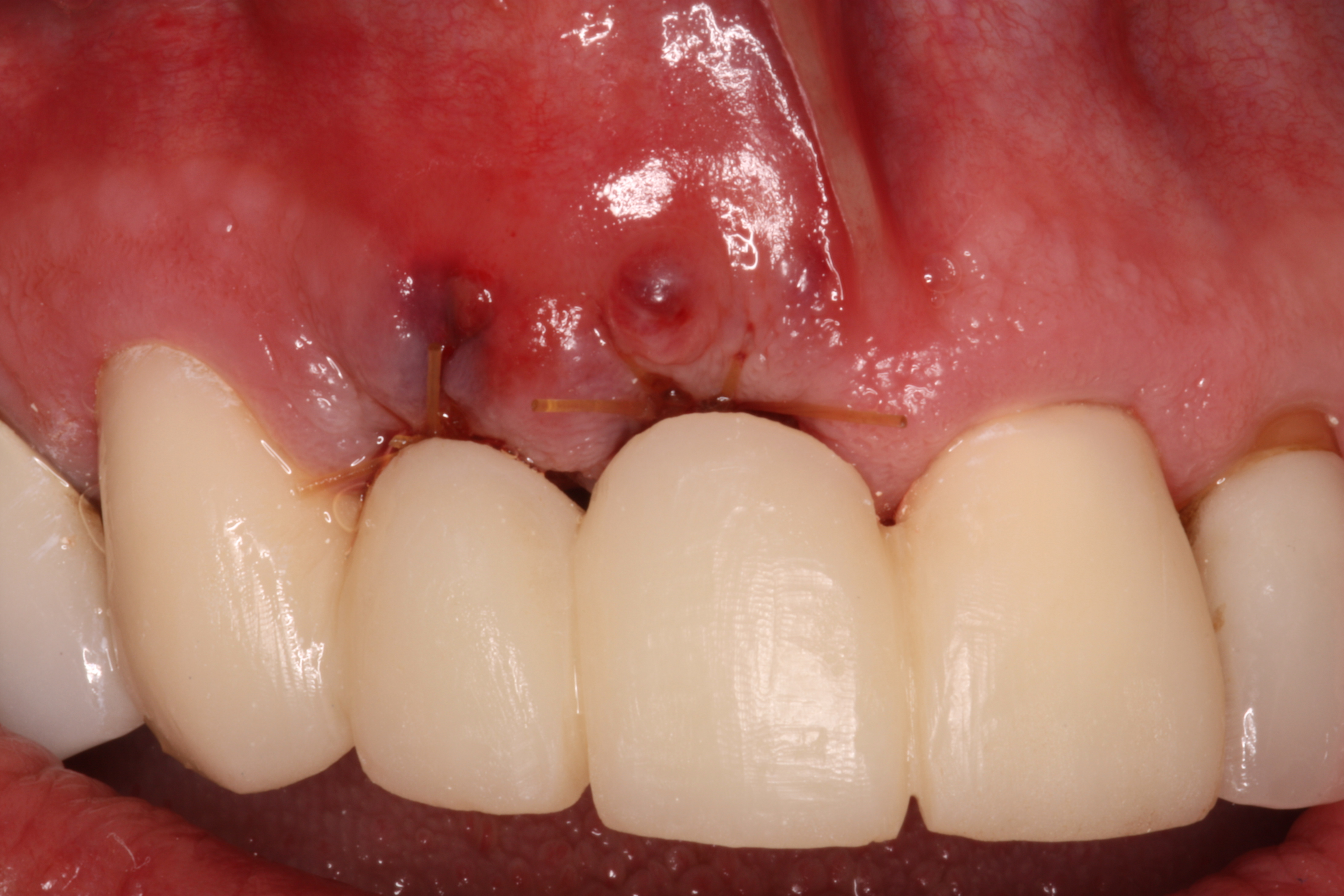 Front View-Bone Graft & Dental Implants - Ryan Lanman DDS, MSD