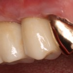 Implant Dentistry with Porcelain Zirconia Implant Restorations
