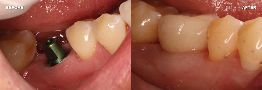 Case 12 - Implants