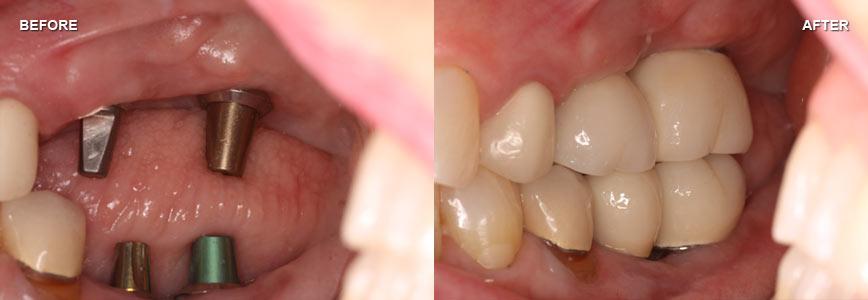 Implants 13
