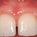 Correction of Excess Gingival Display
