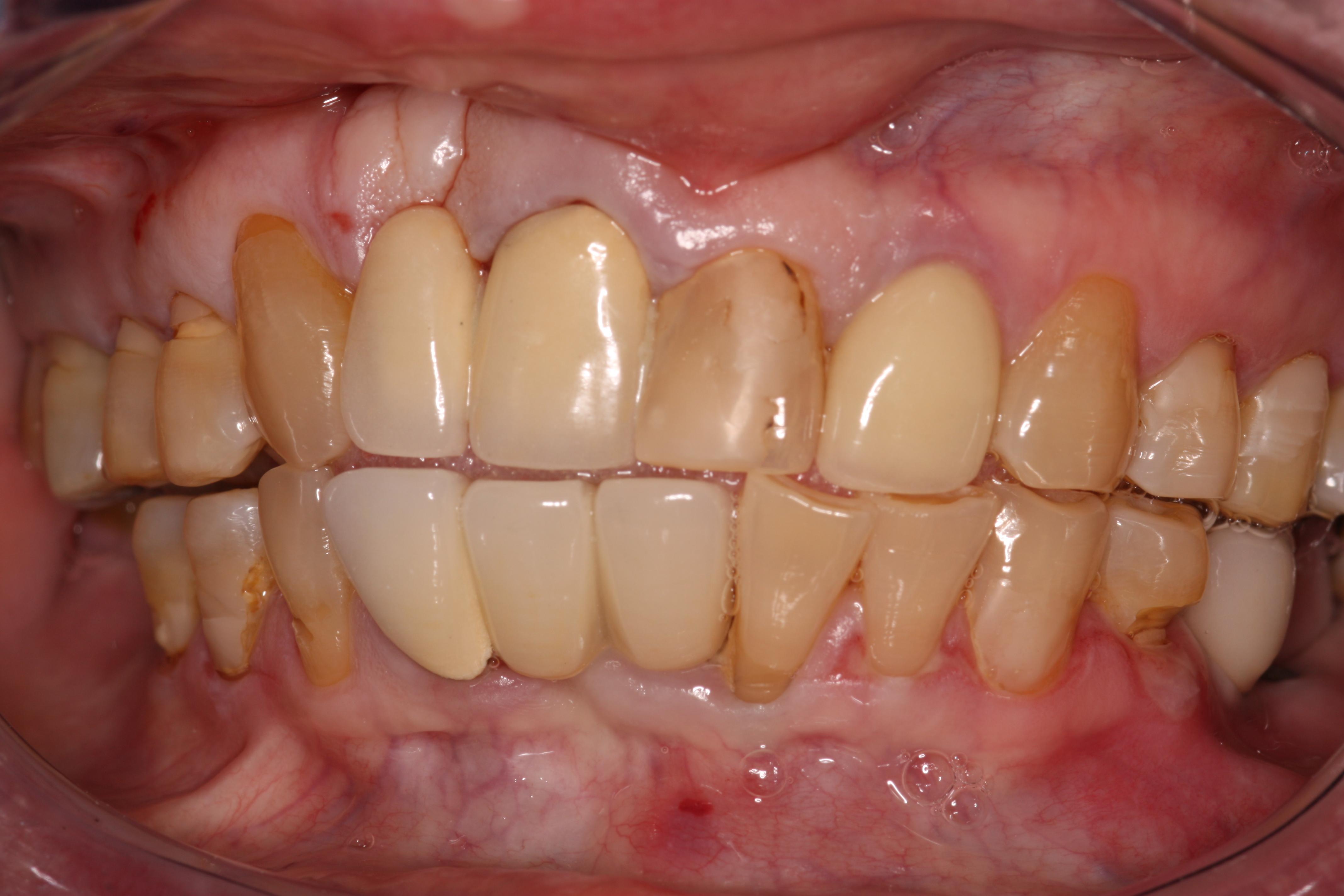 Dental Implants & Dental Tourism