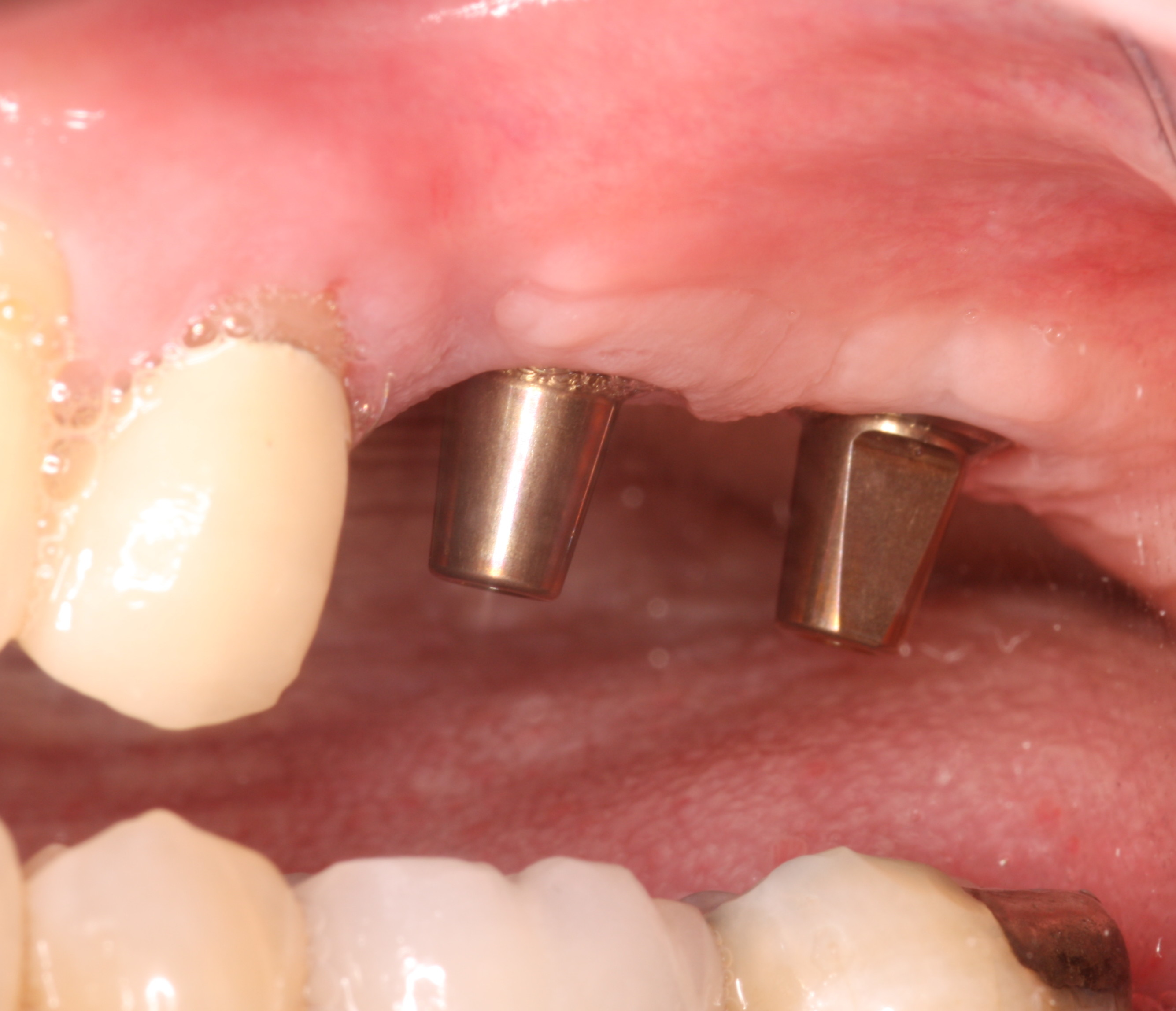 Unrestored dental implants