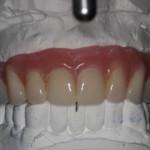 Mounted Denture to Dental Implants