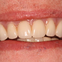 Dental Implants Supporting Upper Denture
