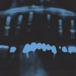 Pano X-Ray of Dental Implants