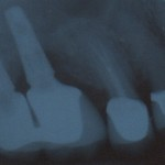 Infection & Dental Implants