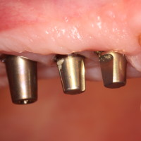 Dental Partial replaced with Dental Implants-OKC