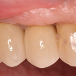 Dental Implants eliminate need for patient's removable appliance