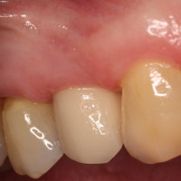 Restored Minimally Invasive Dental Implant