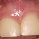 Anterior Dental Implants & Gum Surgery