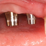 Dental Implants with Abutments
