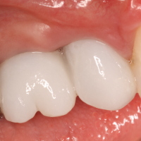 Dental Implants with Crowns