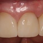 Final Pic: Dental Implants & Teeth