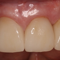 Final Pic: Dental Implants & Teeth