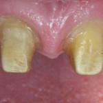 Unrestored Anterior Dental Implants