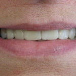 Smile profile with restored dental implants