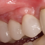 Porcelain Teeth / Dental Implants