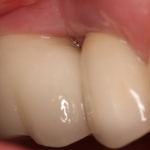 Completed dental implant restoration