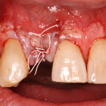Dental Implant / Bone Graft