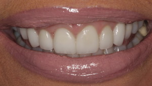 After pic of gummy smile treatment.