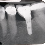 Small mis-placed dental implant.
