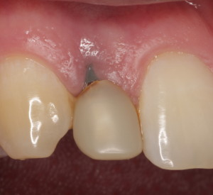 Before Treatment - Implant Revision