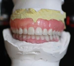 Dental Implants / Lab Casts