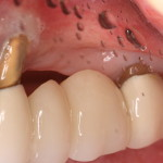 Pre Dental Implant Treatment