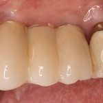 Dental Implants / Crowns