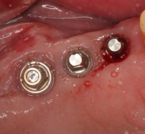 Posterior Dental Implants