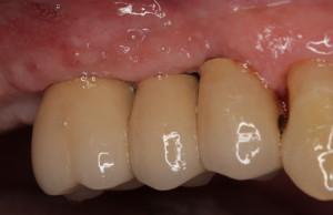 Dental Implants After Restorations